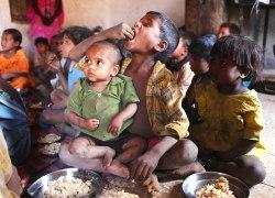 children malnutrition - SPL-WIDTH 250px_HT 180px